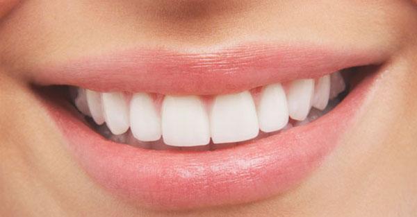 clarear-dentes-forma-natural