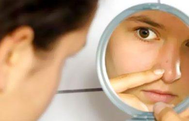 maquiagem-pele-com-acne