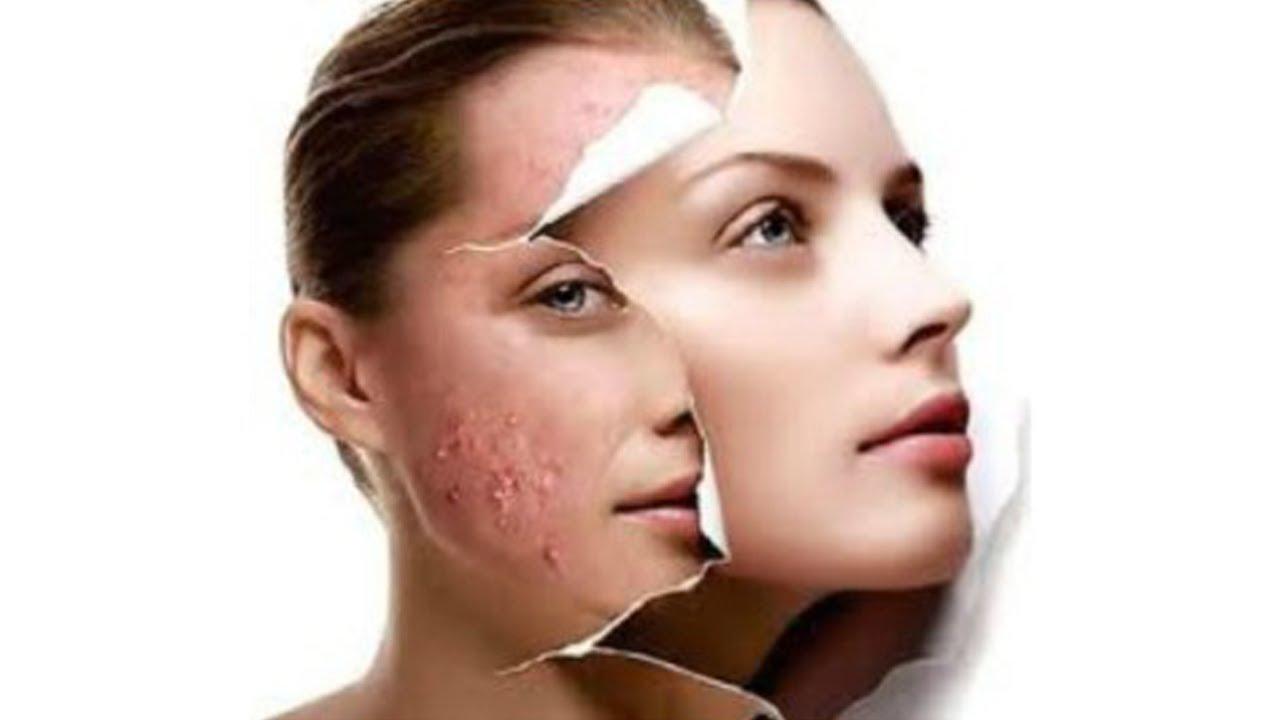 O problema de produtos de cuidado da pele de cara, o que é melhor